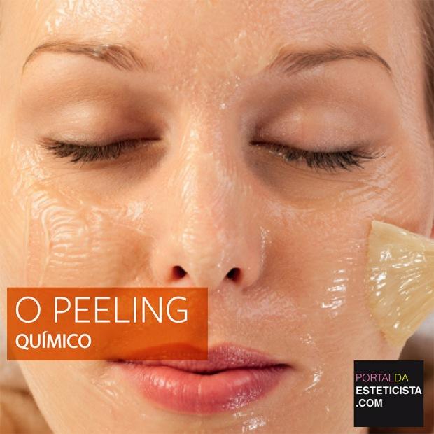 O PEELING QUIMICP